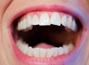Czy warto stosować płyny do płukania jamy ustnej?